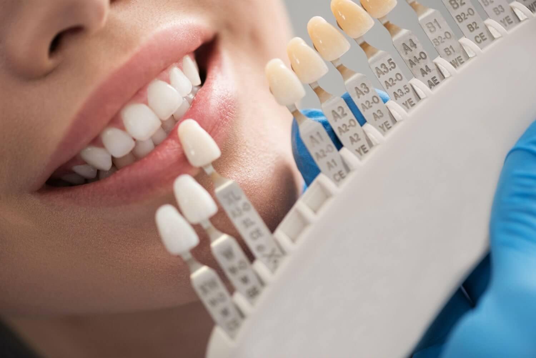 Dental Veneers being placed