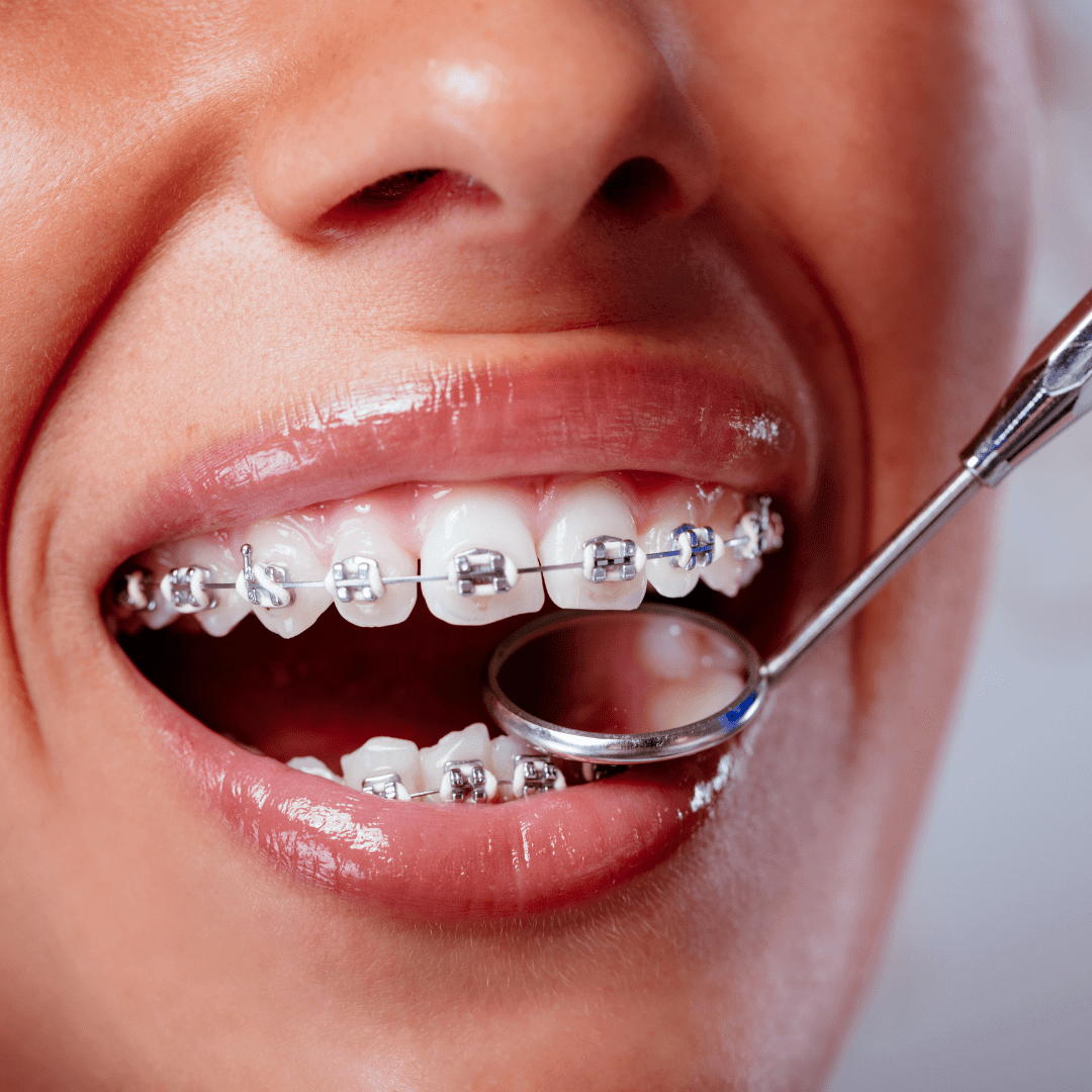 Orthodontics_Fixed Braces